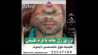 خدمات تخصصی کلینیک زیبایی دایموند
