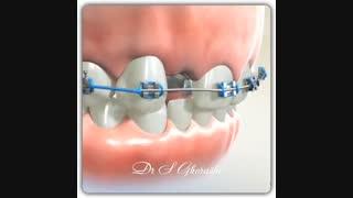 ایجاد فضای لازم برای جایگزینی دندانهای غایب با ایمپلنت | دکتر قریشی