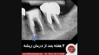نتیجه درمان دندان با عفونت شدید پس از یکسال | دکتر مصطفی نژاد